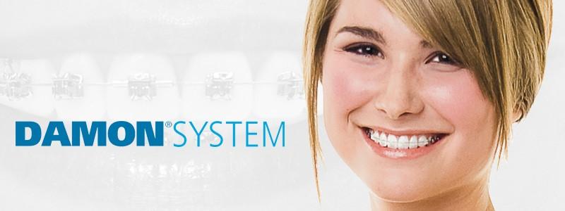 ortodoncia estética brackets