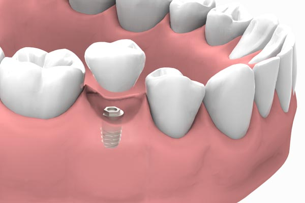 implantes dentales  modo