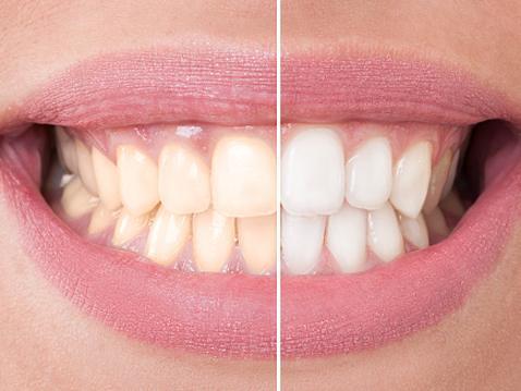 Recomendaciones para el blanqueamiento dental
