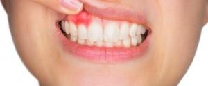 prevención de la gingivitis