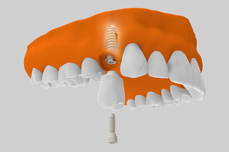 implantes dentales  arriba