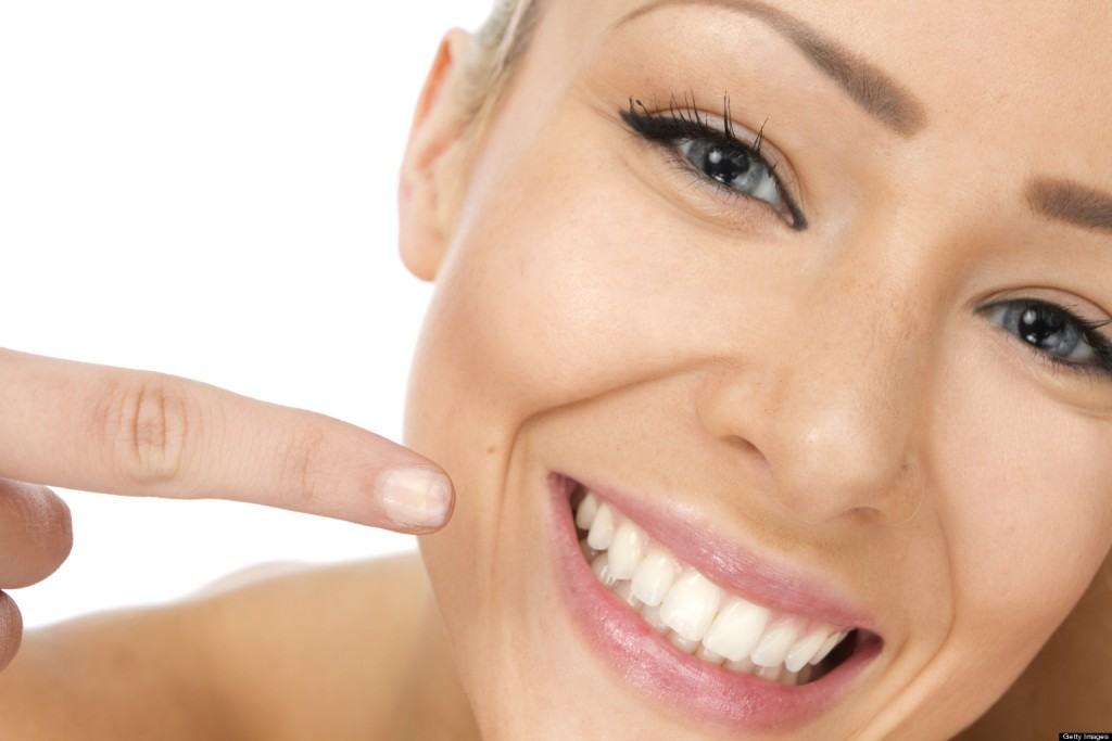 implantes dentales sonrisa
