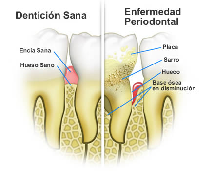 implantes dentales causas
