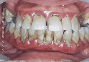 problemas periodontales dental clinic