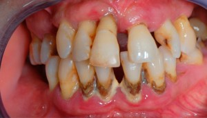 problemas periodontales diparr